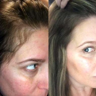 Resultado de imagen para tratamiento alopecia