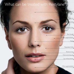 restylane