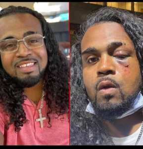 Protester Denorver Garrett Repeatedly Punched By Louisville Metro Police Officer!