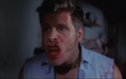 murder set pieces teeth
