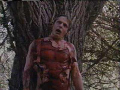 Hunters Blood body