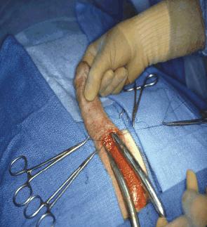 Penis Inplant 103