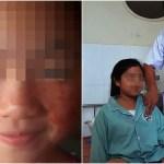 奇病「血汗症」で血の汗を流す11歳少女…死ぬほどのストレスで毛細血管破裂