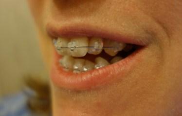 braces day1 (3)