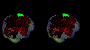 BrainAnalyst VR Module 3D SBS Density FiberTracking - Glioma Case