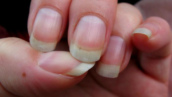 Woman Shares Picture Of Mark On Her Fingernail That Turned Out To Be ...