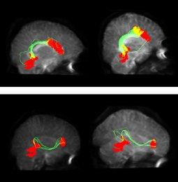 brainconnections.jpg