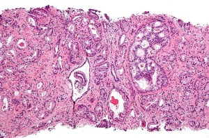 Micrograph showing prostatic acinar adenocarcinoma (the most common form of prostate cancer).