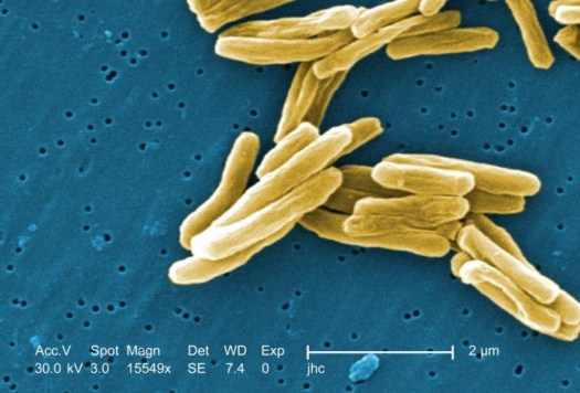 The world famous - Mycobacterium tuberculosis.