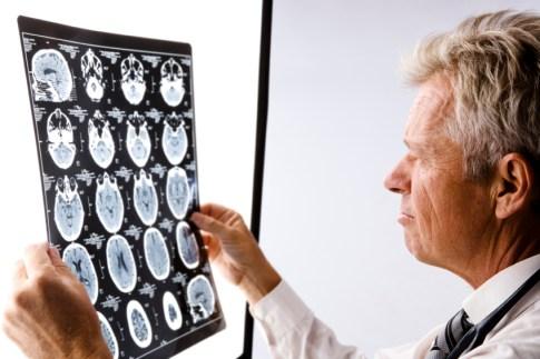 Neurologist Career