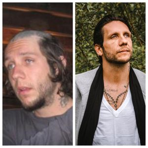 Brandon before and after photos
