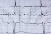 Ako rapídne znížiť vysoký krvný tlak?