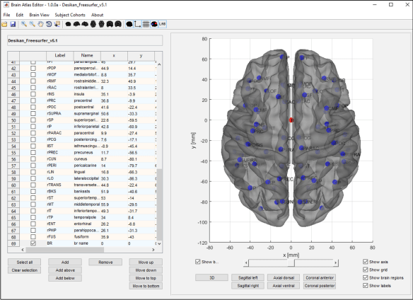 Figure 4: Adding a new brain region to a brain atlas.