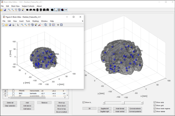Figure 5: Changing visualization of the brain and exporting a 3D view of the brain to a MatLab figure.