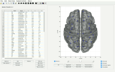 Tutorial of Brain Atlas package
