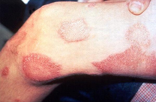 Do ponto de vista histórico, o que de lepra ainda existe na hanseníase?