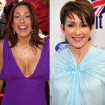 Patricia Heaton Breast Reduction and Botox Surgery