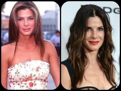 Sandra Bullock Plastic Surgery Speculation