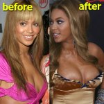 Beyonce Breast Implant Surgery