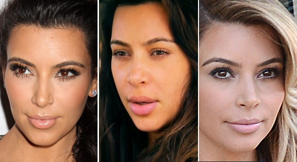Kim Kardashian Lip Implant