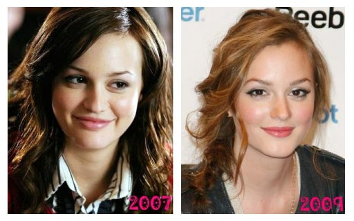 Leighton Meester Nose job