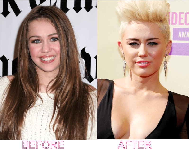 Miley Cyrus Breast Implant