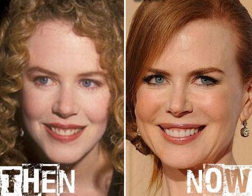 Nicole Kidman Facelift