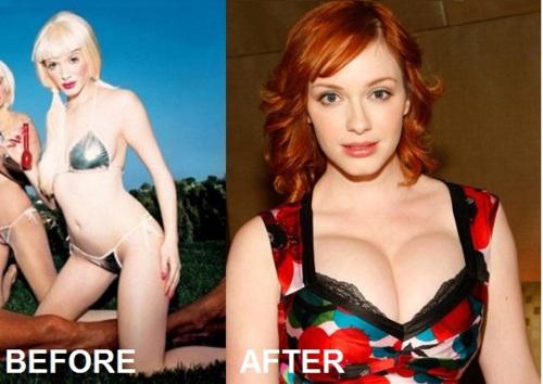 Christina Hendricks Boob Job Surgery