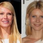 Gwyneth Paltrow Botox Surgery