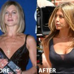 Jennifer Aniston Boob Job Plastic Surgery