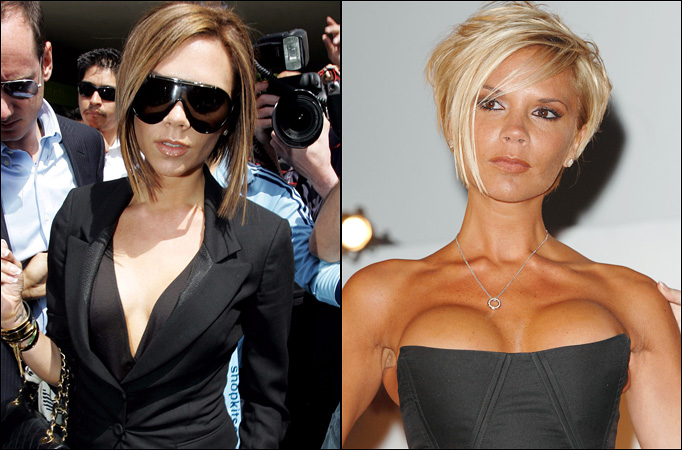 Victoria Beckham Boob Job Surgery