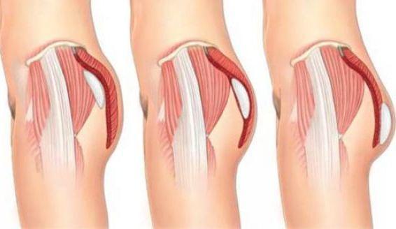 Butt Implant Risk