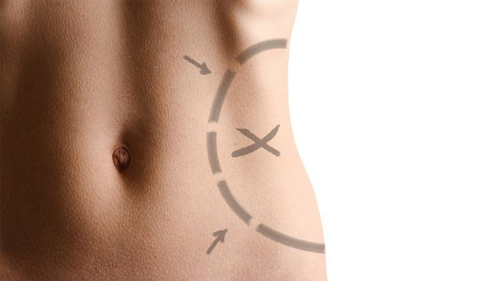 Having Liposuction
