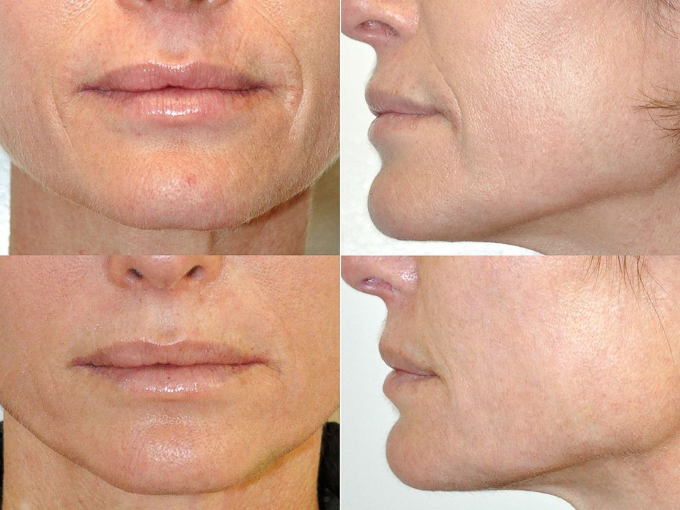 Smoothing Skin Without Surgery