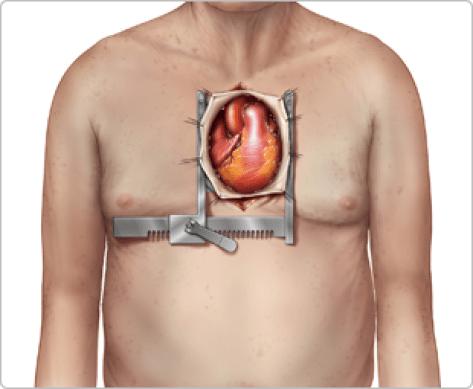 Open Heart Surgery Risks