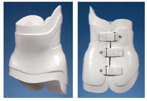 Scoliosis Treatment Surgery