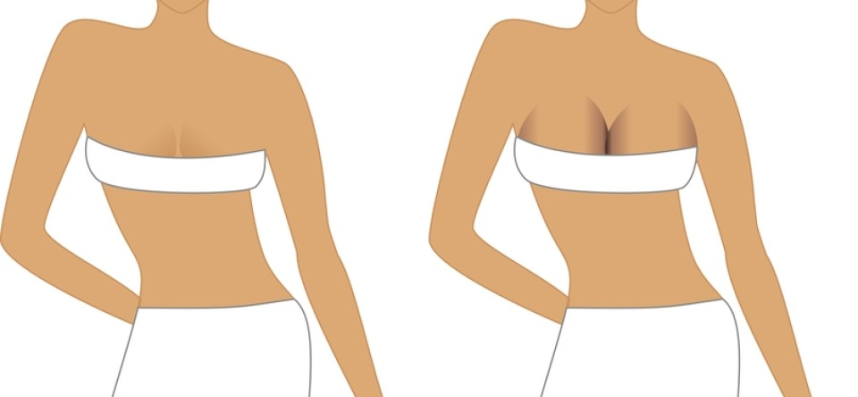 breast implant surgery