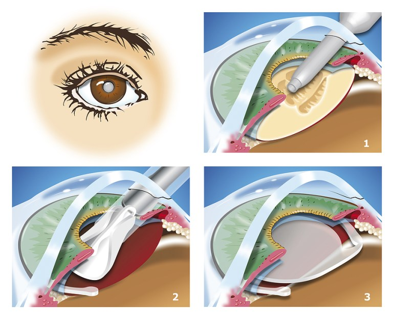 Medication and Treatment After Cataract Surgery