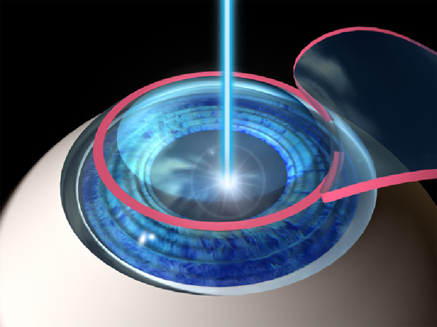 Reduced Lasik Eye Surgery