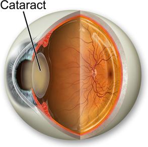 Treatment Cataract Eye Surgery