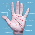 Palm Lines Surgery Procedure