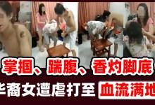 Photo of 华裔少女疑遭人虐待 掌掴、踹腹、香灼脚底 遭虐打至血流满地!!
