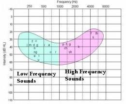 Audiogram of Hearing (3/6)