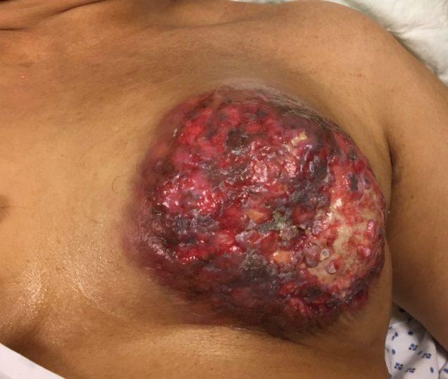 Locally advanced breast cancer 1