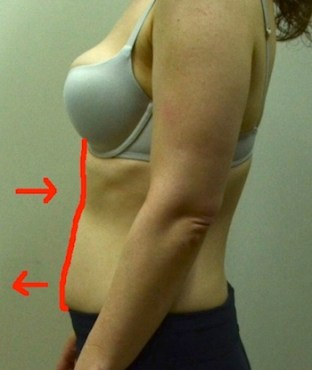 jennifer-side-close-look-at-rectus-with-lines 2