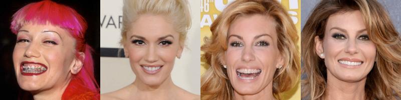 Faith Hill Teeth And After