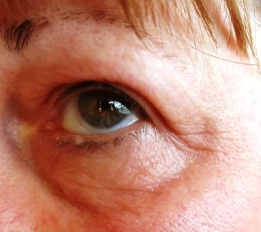 post-colagen-treatment-close-up