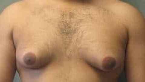 Flax Oil: Should Men Avoid It?