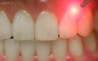 Laser Dentistry - Mississauga Dentist - Bristol Dental