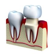 Dental crowns - Mississauga Dentist - Bristol Dental